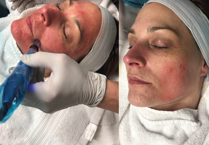 Microneedling - Empower Med Spa